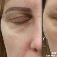 Permanent Eyebrow Makeup(ErasedLaserTattooRemoval.com)